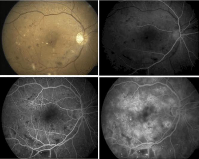retinopatía de purtscher