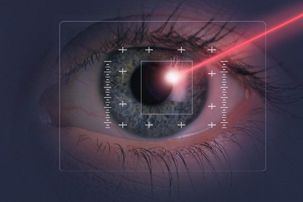 cirugia laser para retinopatia