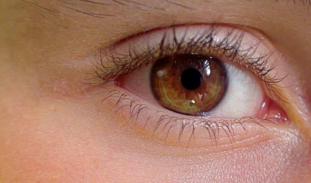 retinopatia serosa central