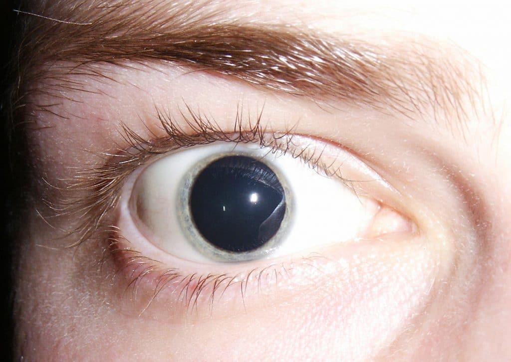 dilatacion para diagnosticar retinopatia