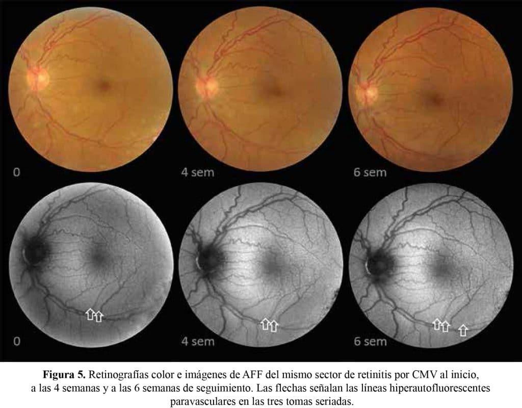 retinopatia esclopetaria