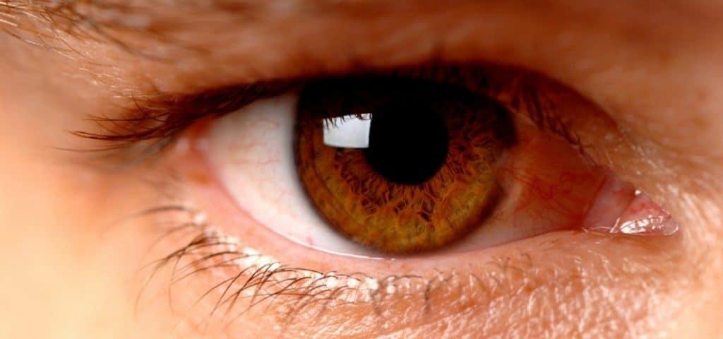 imagen de retinopatia