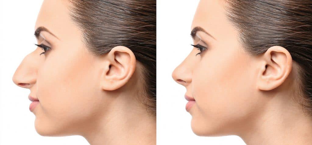 chica con nariz de rinoplastia
