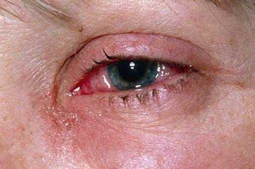 síntomas de la rinitis alérgica 5