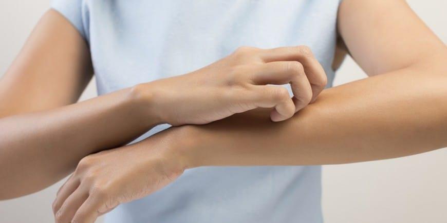 síntomas-de-la-rinitis-alérgica-9