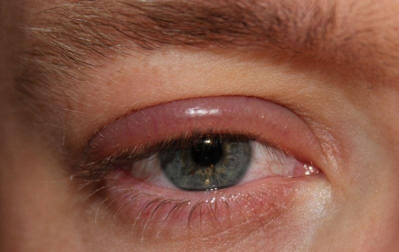 sindrome oculoglandular de parinaud
