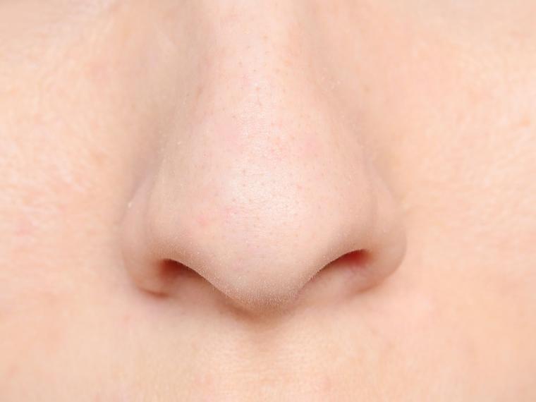 poliposis-nasal-1