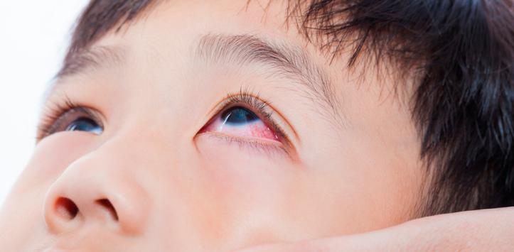 tracoma-1