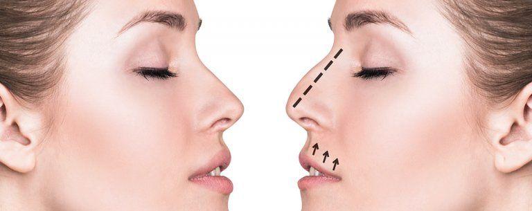 fractura de la nariz