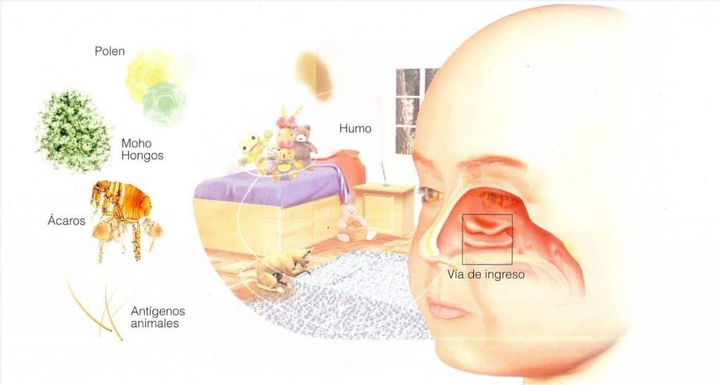 elementos que activan la Rinitis