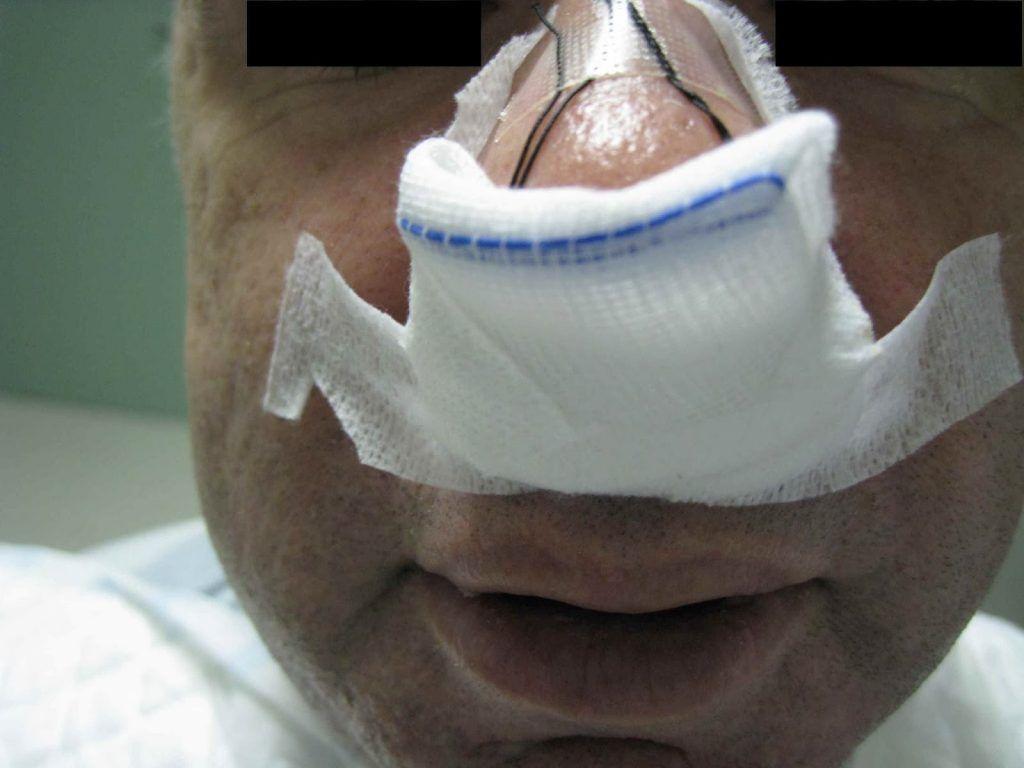 bigotera para Epistaxis