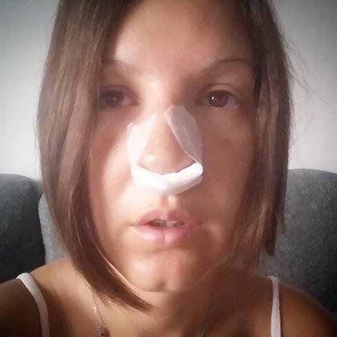 colocar bigotera luego del taponamiento