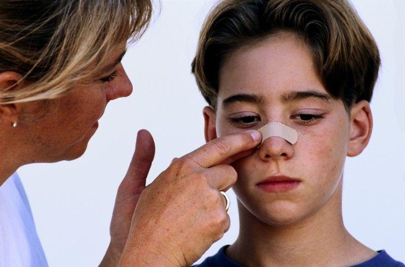sangrado nasal o Epistaxis