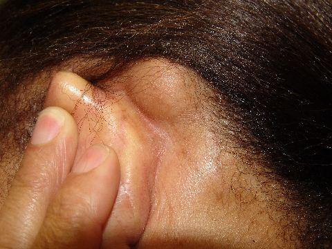 Mastoiditis: Qué es, causas, síntomas  y más