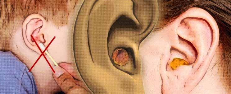 causas de producir mucha cera en los oidos
