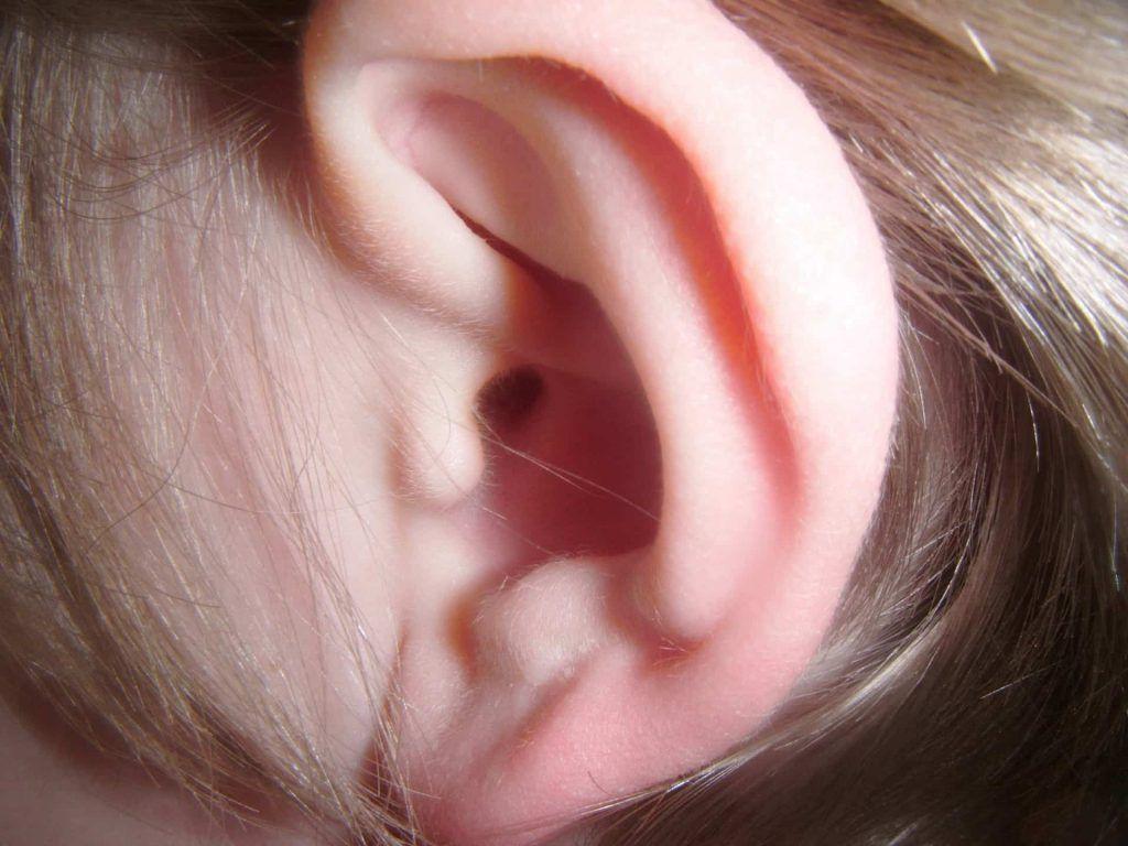 algun cuerpo extraño en el oido