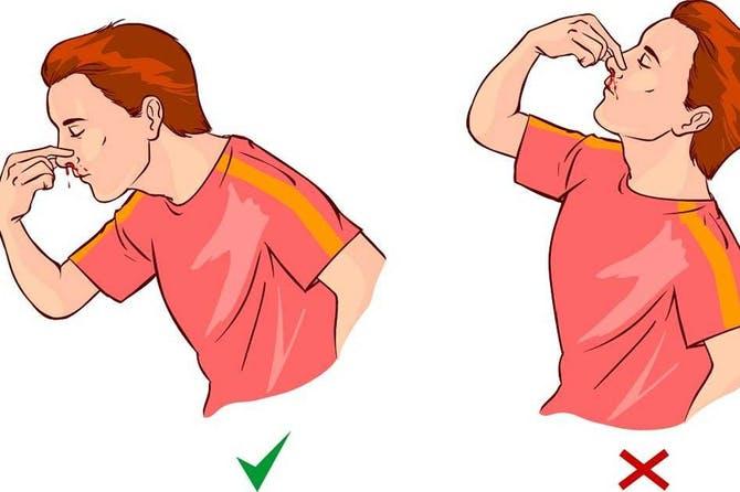 Epistaxis y posición correcta