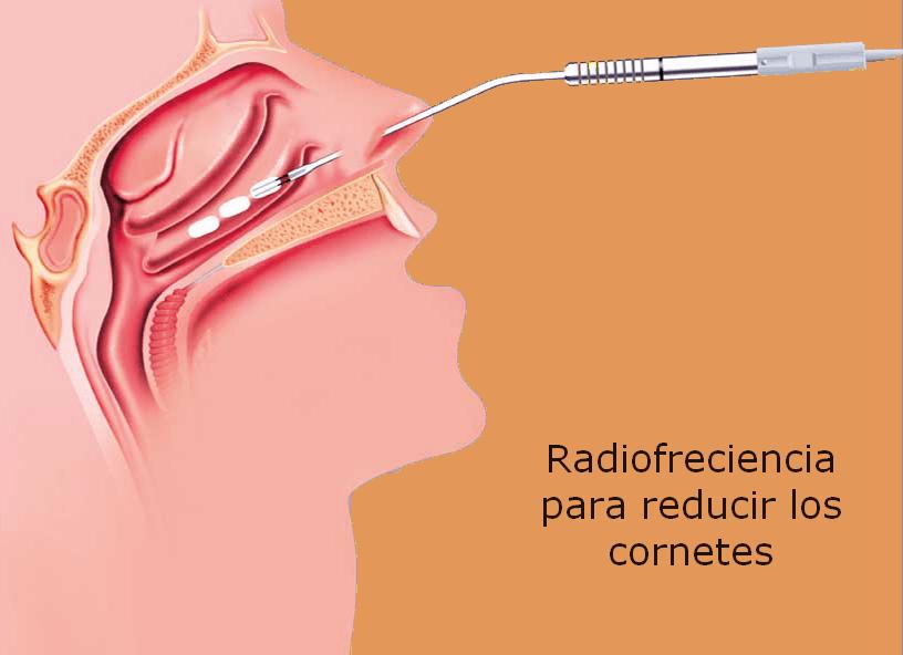hipertrofia-de-cornetes.16