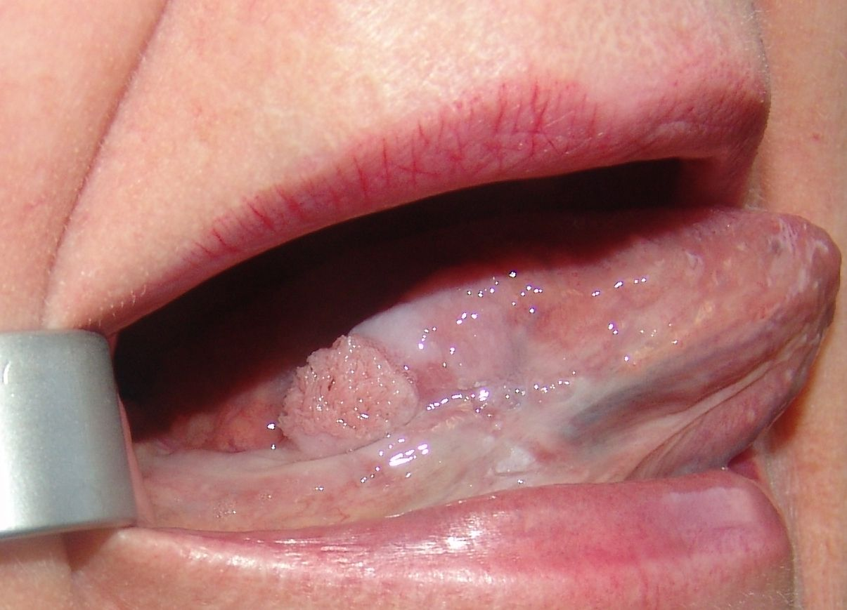 Porque tengo manchas oscuras en la lengua