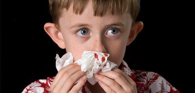 Epistaxis en niños