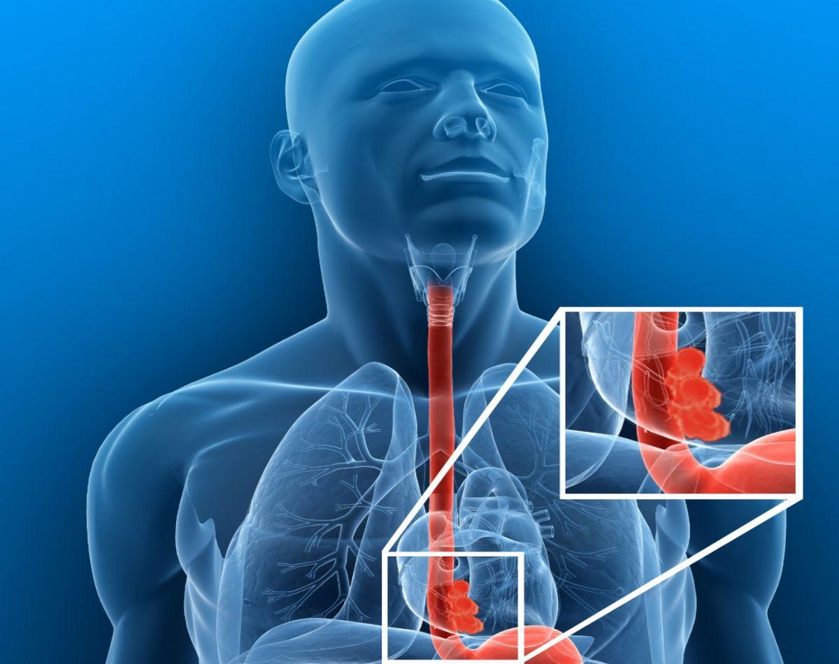 los sintomas de cancer de esofago