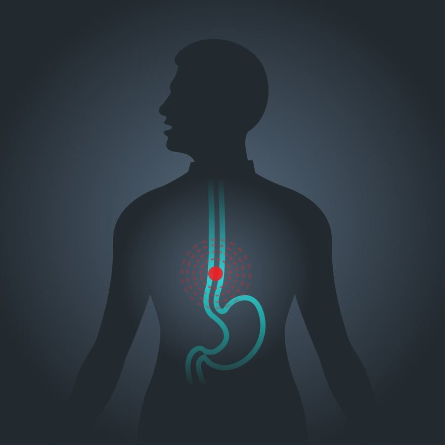varios sintomas de cancer de esofago