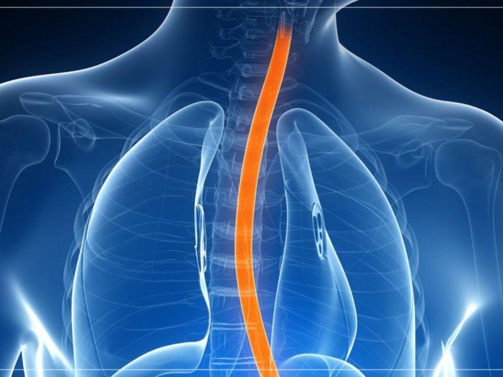 cuales son sintomas de cancer de esofago