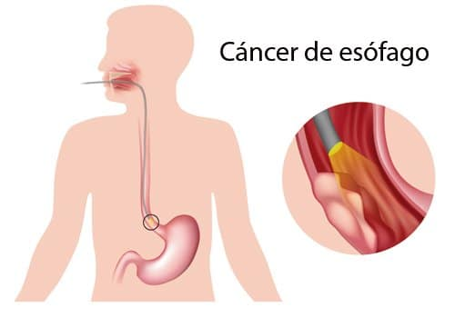 Cancer-de-esofago-1