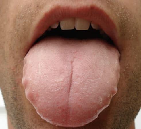 Lengua dentada: Todo lo que debes saber