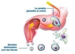 amebiasis y su tratamiento disenteria