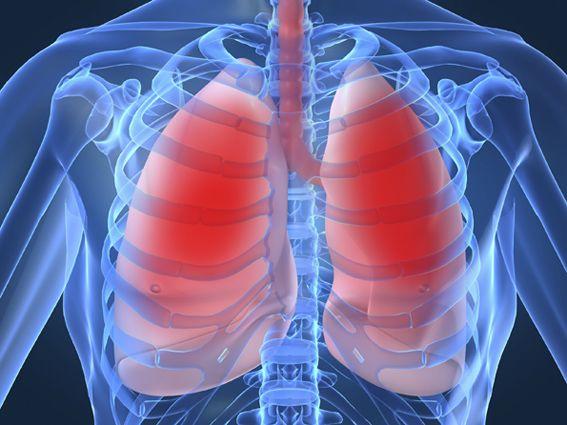 bronquitis cronica