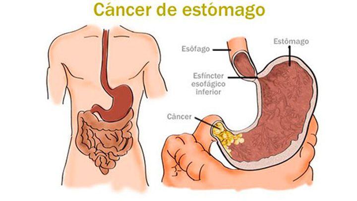 A que se debe el cancer de estomago