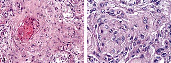 cáncer de esófago