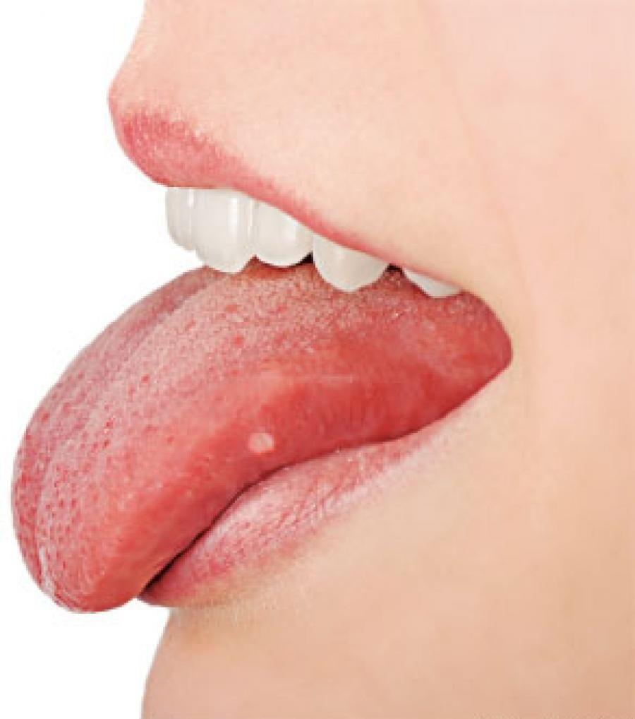 Candida de la boca