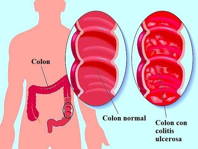 colitis-ulcerosa-1