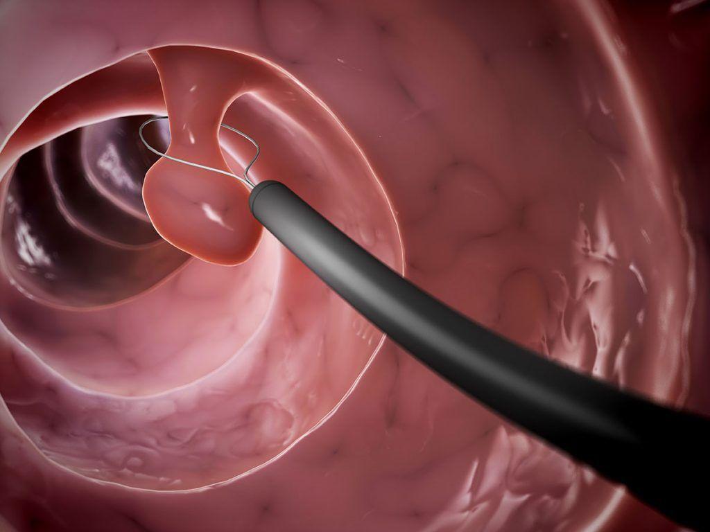 colonocopia en Colitis ulcerosa