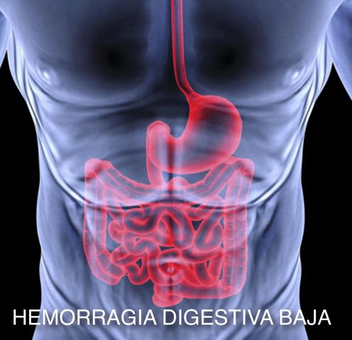hemorragia digestiva baja historia