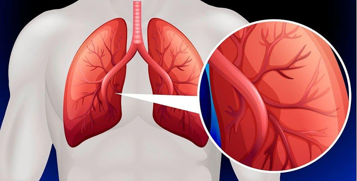 Hipertensión pulmonar: definición, causas, síntomas..