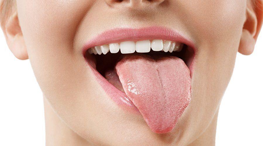 lengua vellosa entre Enfermedades de la lengua