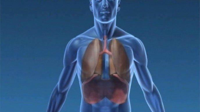 neumotórax