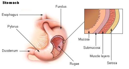 polipos-gastricos-1