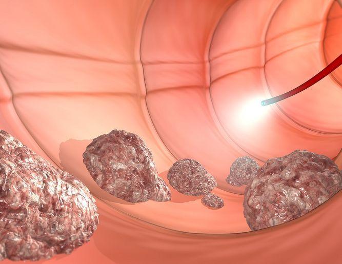 Sintomas de cancer en el colon cuales son