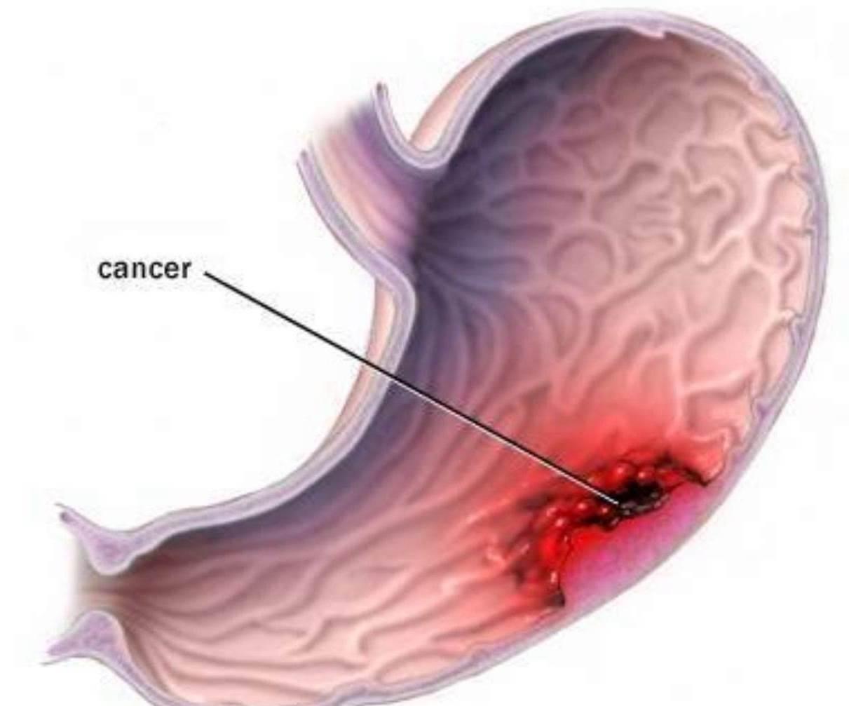 sintomas de cancer de estomago