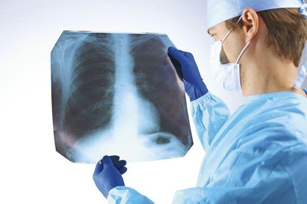 radiografía de tórax para Edema pulmonar
