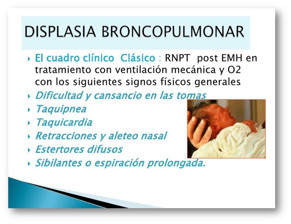 displasia pulmonar