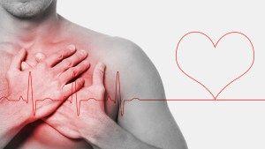 tratamiento en angina de pecho