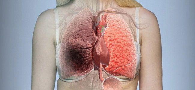 bulla pulmonar