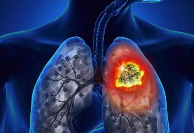 Los sintomas cancer pulmones de tener en
