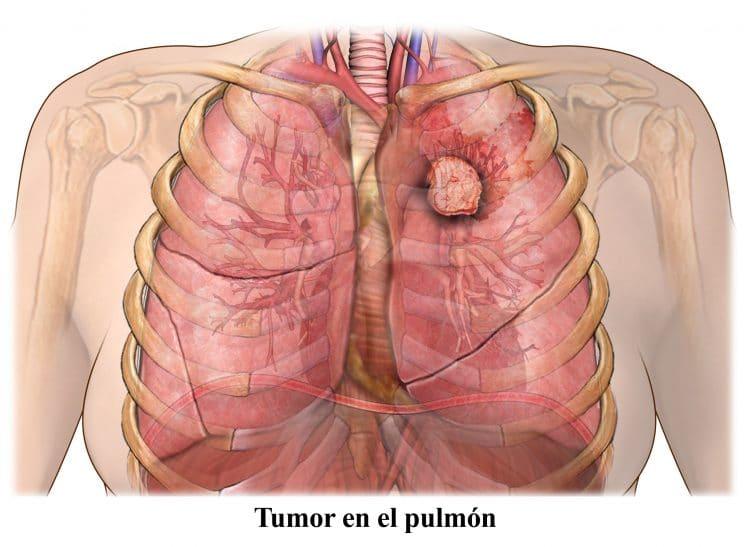 cancer de pulmon con metastasis en el higado esperanza de vida