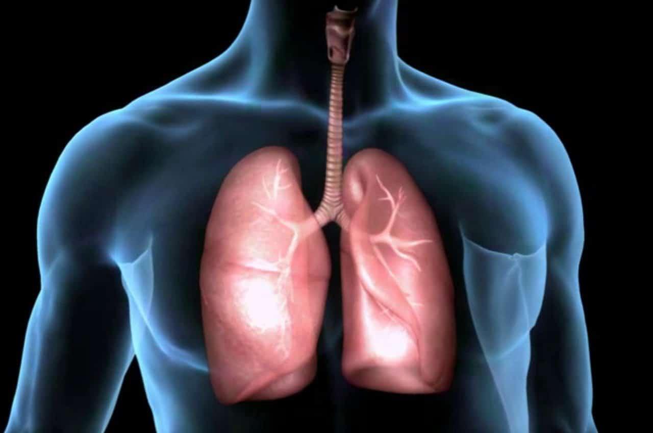hipoplasia pulmonar 18